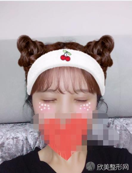 郑州辰星医疗美容医院刘芳医生做双眼皮之后