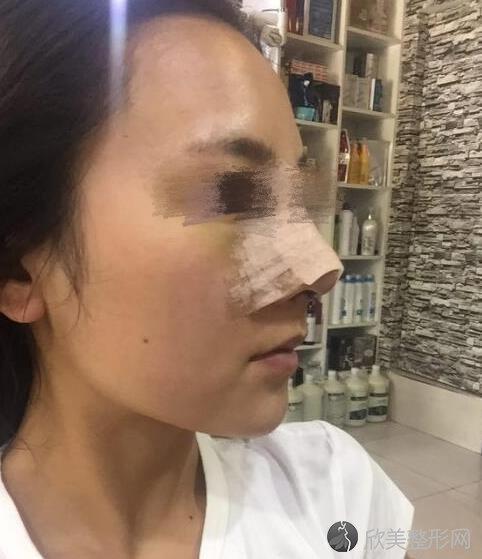 郑州丽天医疗美容罗明生医生隆鼻之后