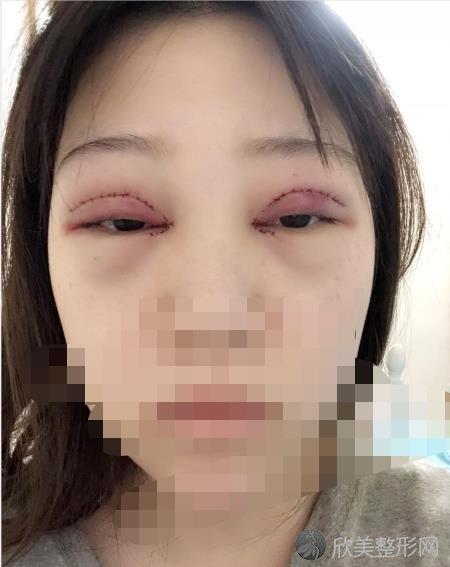 重庆郑荃丽格整形美容郑荃医生做双眼皮之后