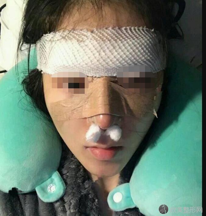 重庆曹阳丽格医疗美容曹阳医生硅胶隆鼻之后