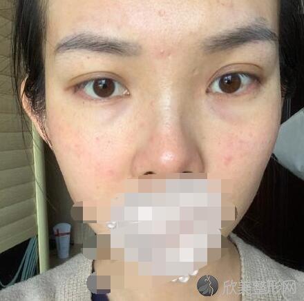 光子嫩肤术后10天