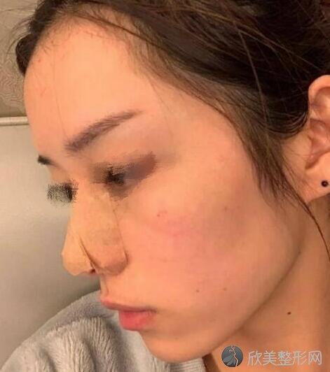 隆鼻术后20天
