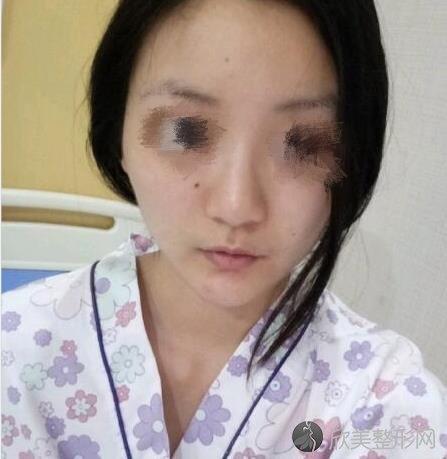 重庆星宸整形美容何春涛医生做假体隆鼻之前
