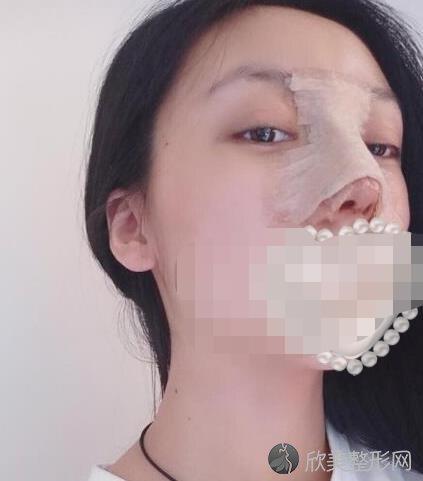 重庆星宸整形美容何春涛医生做假体隆鼻恢复期
