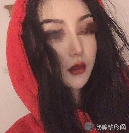 重庆星宸整形美容何春涛医生做假体隆鼻之后