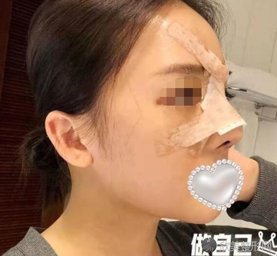 重庆星宸整形美容王振荣医生做假体隆鼻恢复期