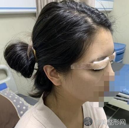 重庆鹏爱医疗美容段科医生做全切双眼皮之前