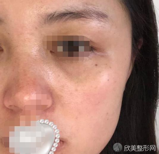 重庆光博士整形吴莉平医生做激光祛斑之前