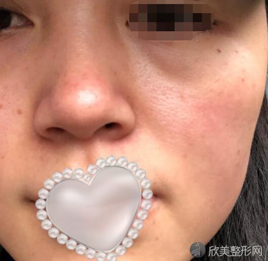 重庆光博士整形吴莉平医生做激光祛斑之后