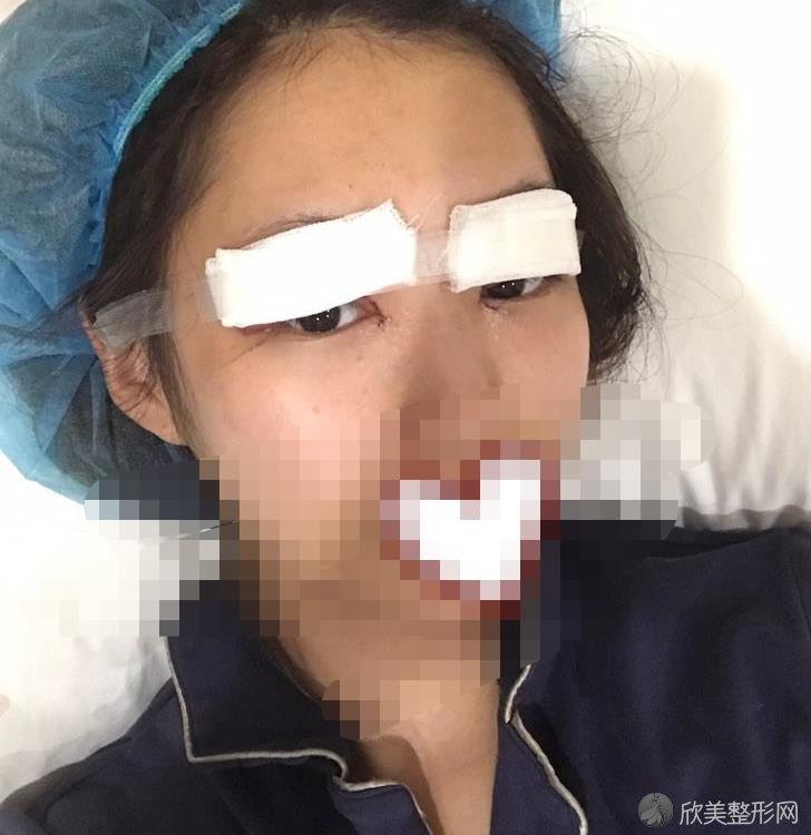 重庆好美整形美容李曾显医生做全切双眼皮后