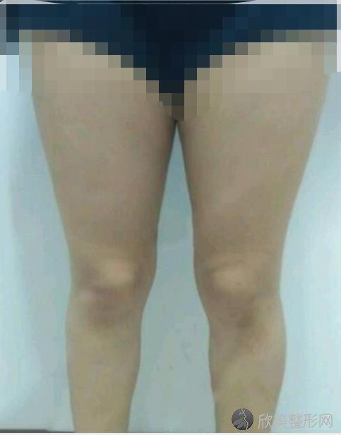 重庆光博士整形美容曹勇医生做大腿吸脂之前