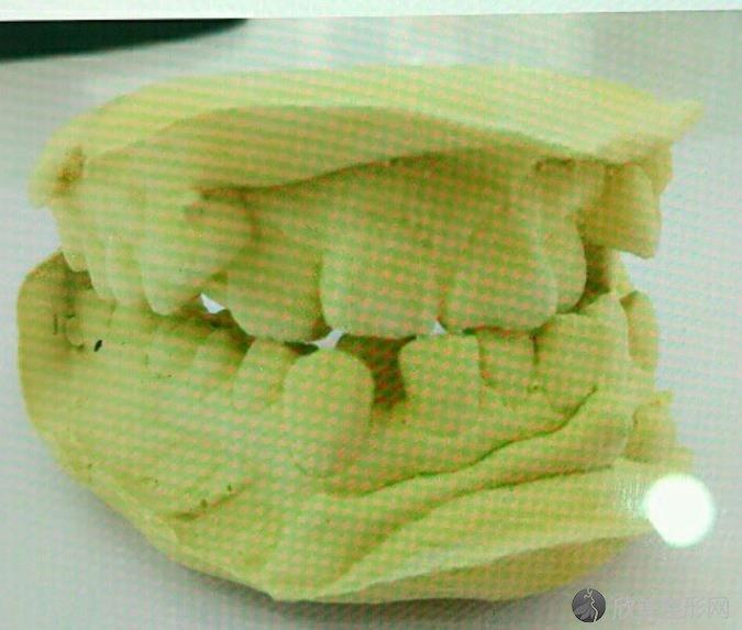 重庆牙博士口腔医院胡炯辉医生做隐适美牙齿矫正之前