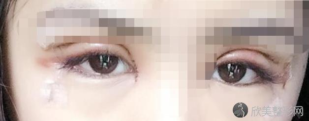 郑州集美美容医院刘德辉医生做双眼皮之后
