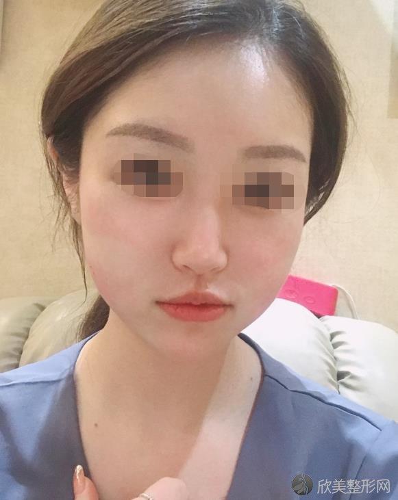 郑州辰星医疗美容医院常玉杰做瘦脸针之前