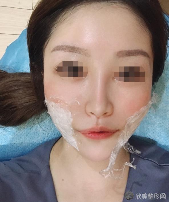 郑州辰星医疗美容医院常玉杰做瘦脸针之后