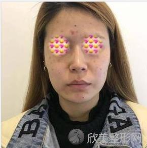重庆五洲医疗美容袁菡医生做祛斑之前