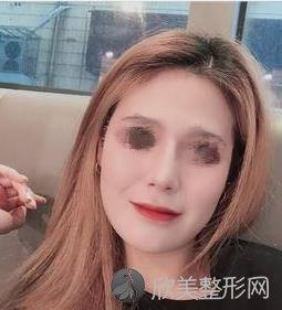 重庆五洲医疗美容袁菡医生做祛斑之后