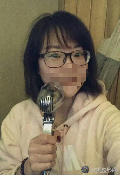 重庆联合丽格美容医院王志军医生做鱼尾纹去除手术