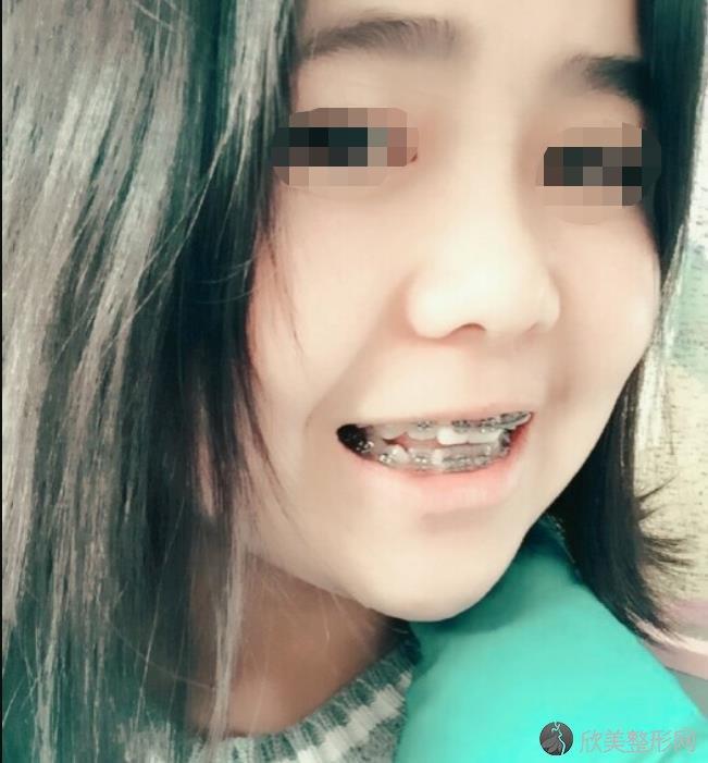 郑州集美美容医院刘洋做牙齿整形之后