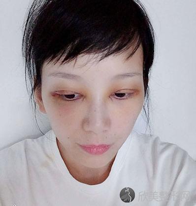 王娟是丑八怪