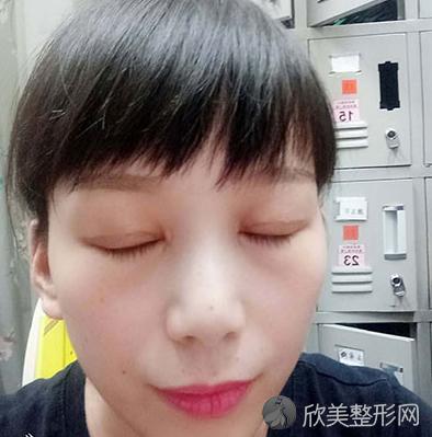 王娟是丑八怪的眼综合整形术后照