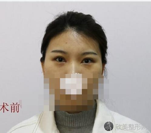 北京上上相候月华医生自体脂肪填充之前