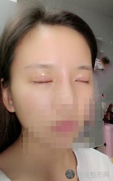 苏州附一院钟蕾医生眼部综合手术之前