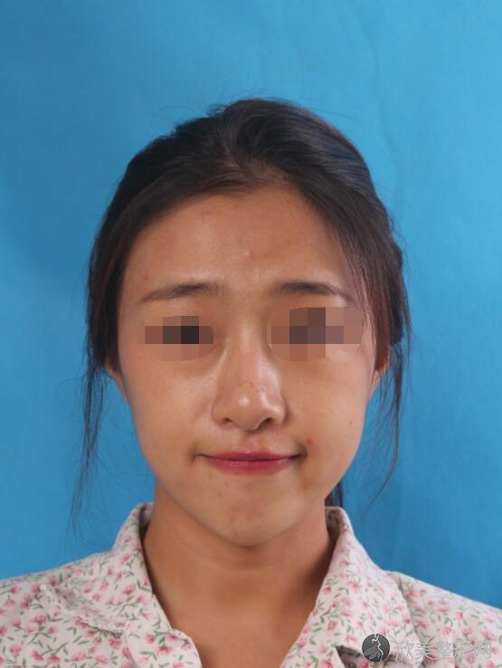 隆鼻修复术前