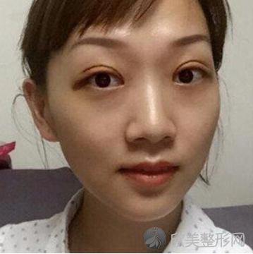 阿紫的双眼皮失败修复术后照
