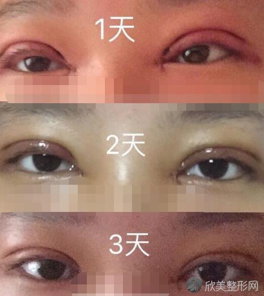 郑州和沐整形医院双眼皮之后