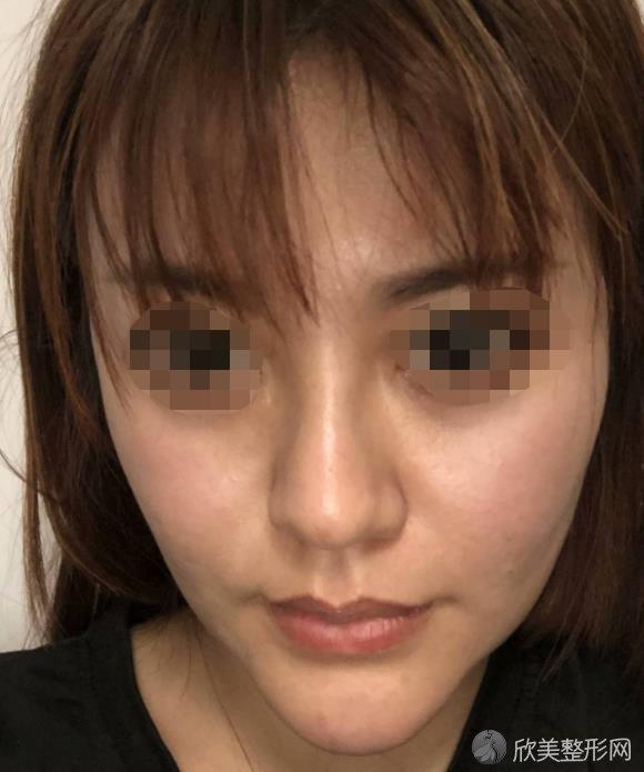 重庆五洲整形医院做注射除皱之前