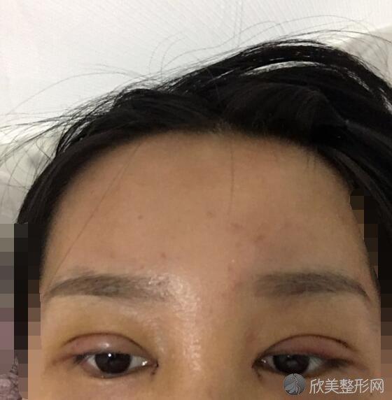 双眼皮术后20天