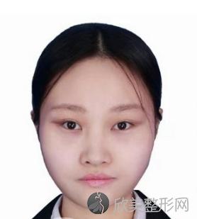 北京美加丽彦付瑶做双眼皮整形怎么样?真实案例及价格表分享