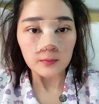 成都铜雀台整形雷刚做鼻综合怎么样?我术后60天鼻子恢复得很不错