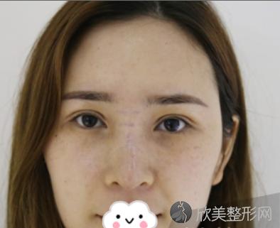 成都铜雀台周柯做假体隆鼻怎么样?我术后60天鼻子效果真心不错
