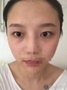 上海华美叶丽萍做眼睛怎么样?内附双眼皮案例及价格表