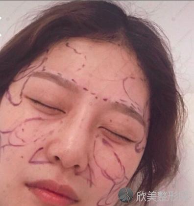 成都华美紫馨刘会省怎么样?看医生介绍+脸部填充案例分享更清楚!