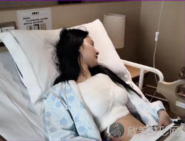 成都华美紫馨宋晓东医生隆胸怎么样?看我术后30天胸部状态就知道了