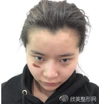成都军建华西李书海医生激光祛疤怎么样?看我术后30天祛疤效果就知道