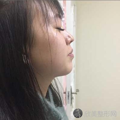 成都美容整形冯春雨医生做鼻综合整形怎么样?术后60天我有了小翘鼻
