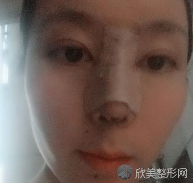 成都素美整形李杨医生做鼻综合整形好吗?参考我术后30天鼻综合整形效果