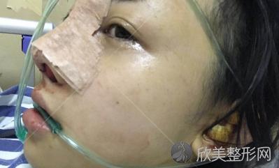 成都西区整形医院邓东伟隆鼻怎么样?手术后60天我有了小翘鼻