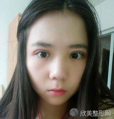 成都素美杨迪做双眼皮怎么样?双眼皮真实案例分享