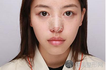 薰薰的鼻综合整形术前照