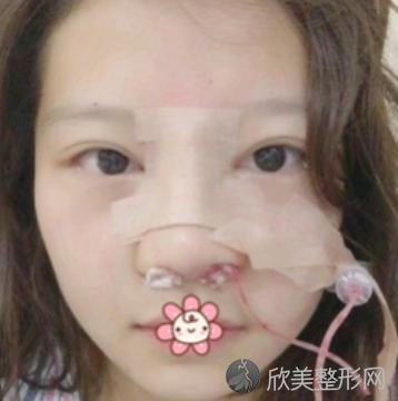 成都铜雀台刘溪做鼻子怎么样?真实案例一览附赠手术前后对比图