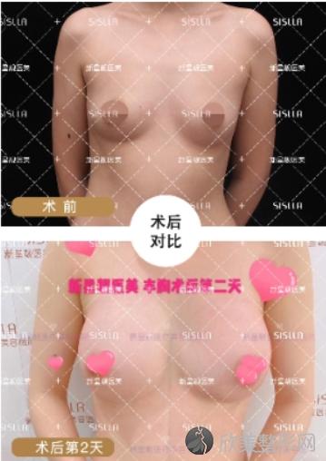 北京新星靓李伟民自体脂肪隆胸