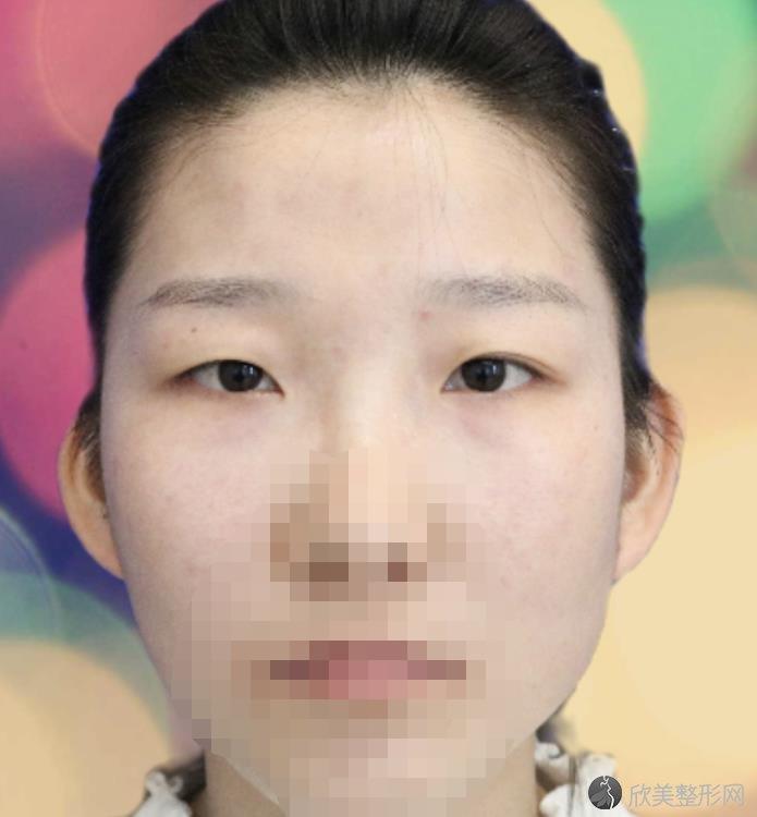 广州懿美秀医疗美容医院做双眼皮之前