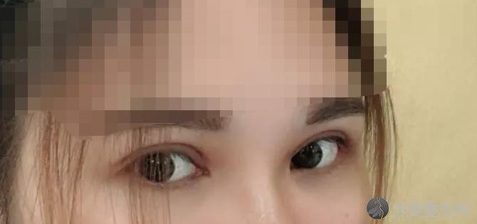 广州懿美秀医疗美容医院做双眼皮之后