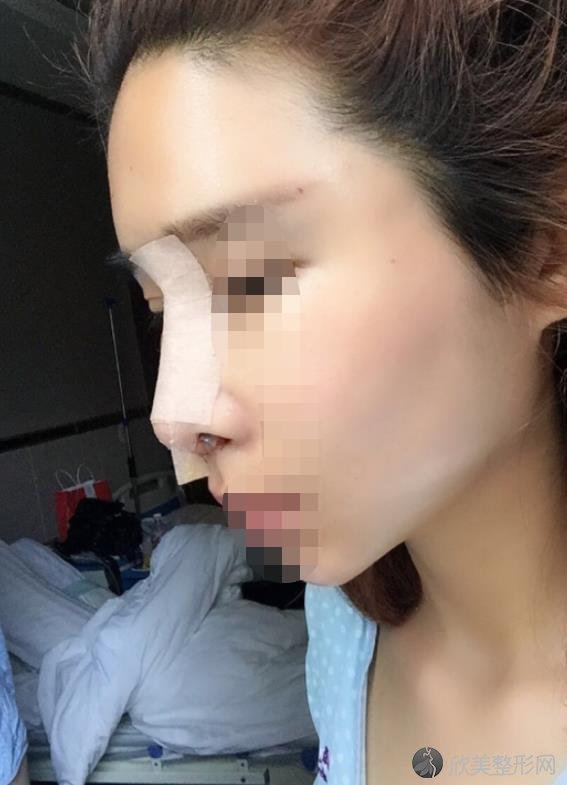 广州懿美秀医疗美容医院隆鼻之后