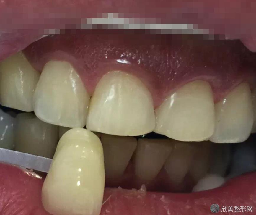 武汉牙卫士口腔医院做牙齿美白之前